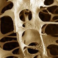 Обнаружен новый подход к лечению остеопороза
