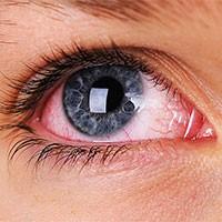 Ученые используют искусственный интеллект для диагностики увеита