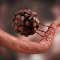 Передается ли ВИЧ от матери к ребенку?