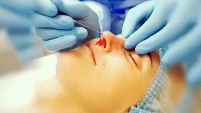 МВД проверит хирурга-самоучку, ведущего трансляции операций с чердака