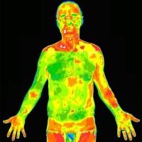 Тепловая визуализация поможет в диагностике артрита