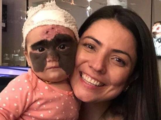 Российский врач избавил американскую малышку от огромной родинки: коллеги заволновались