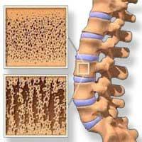 Плотность костей зависит от белка протеогликана